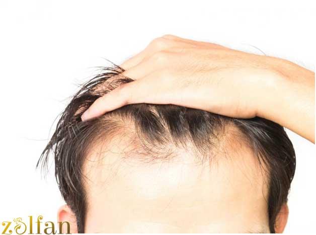 ژنتیک و ریزش مو